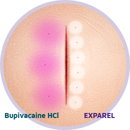 Surgical site comparison between EXPAREL administration and bupivacaine HCl administration