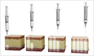4 step cross-section revealing the technique for proper surgical site infiltration
