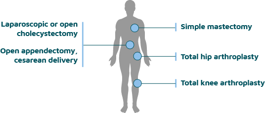 Diagram of surgical procedures and locations on the body where risk is highest for long-term postsurgical opioid use
